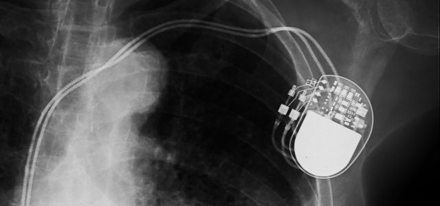 Featured Image for A New Pacemaker Hack Puts Malware Directly on the Device